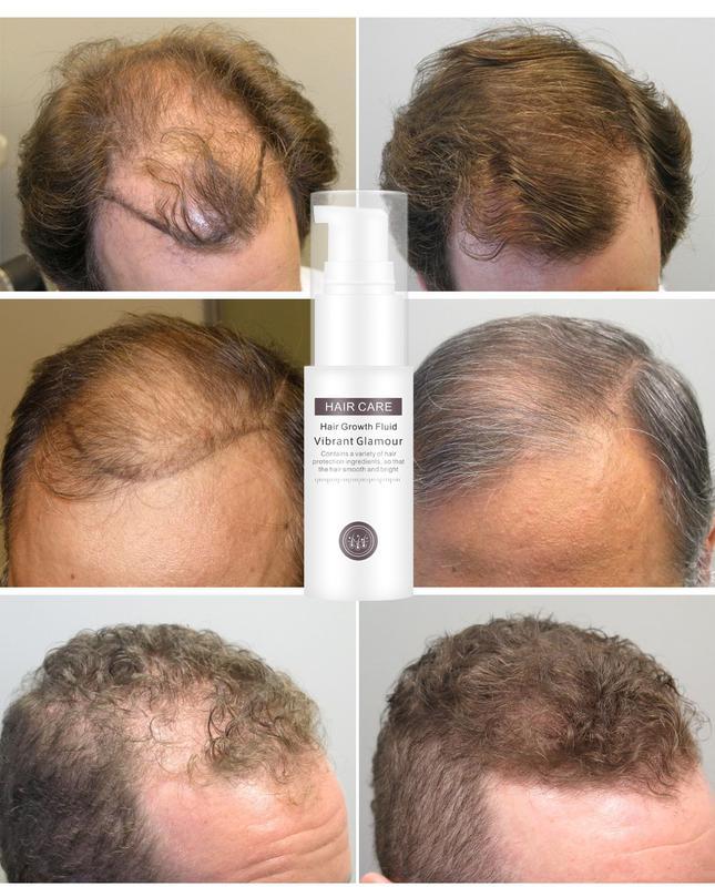 Активатор роста волос с экстрактом женьшеня и плодов малины - Фото 10