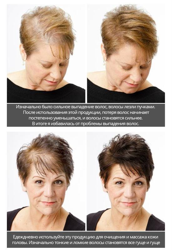 Активатор роста волос с экстрактом женьшеня и плодов малины - Фото 2