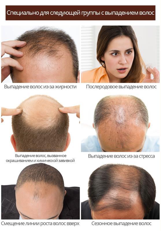 Активатор роста волос с экстрактом женьшеня и плодов малины - Фото 11