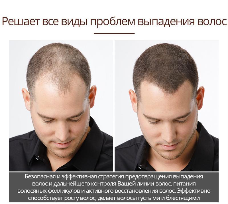 Активатор роста волос с экстрактом женьшеня и плодов малины - Фото 12