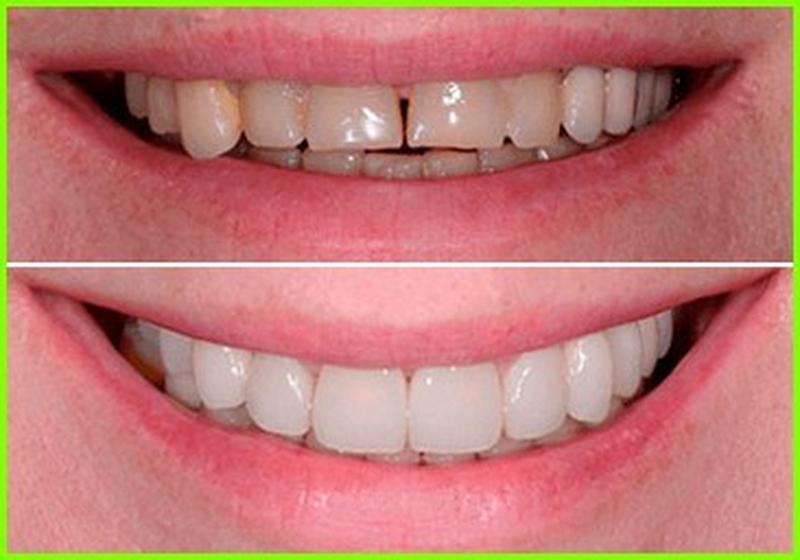 Виниры для Зубов Perfect Smile Veneer Зубы - Фото 4