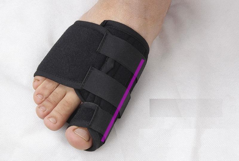 Корректор фиксатор на палец ноги - Фото 3