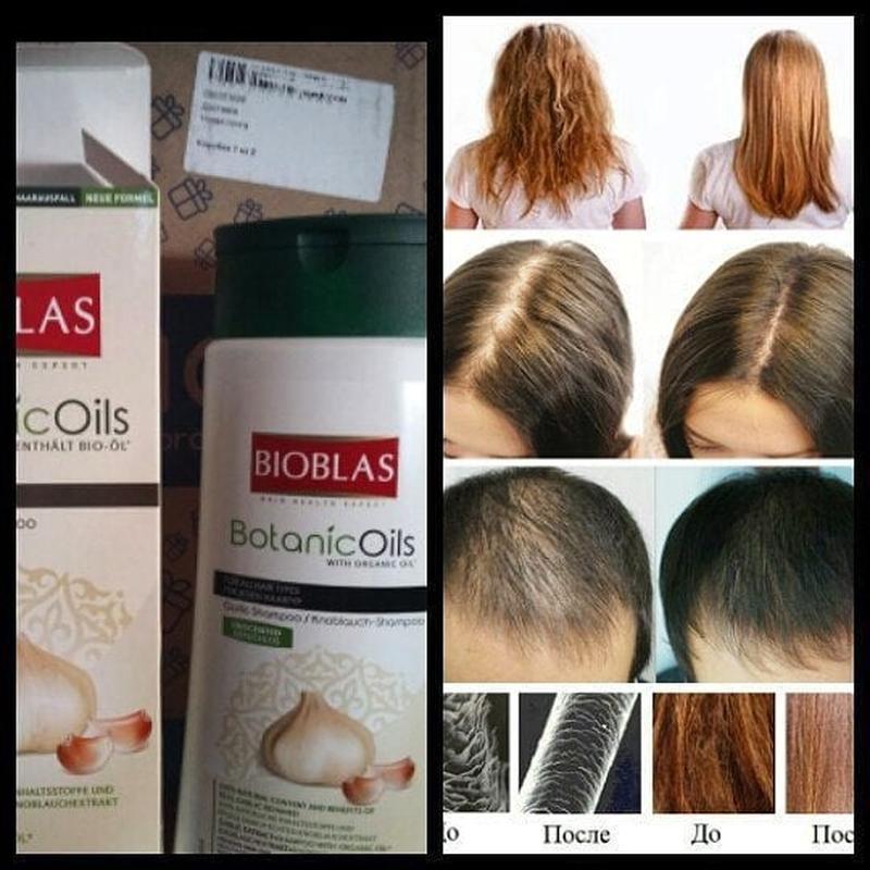 Шампунь против выпадения волос юнайс