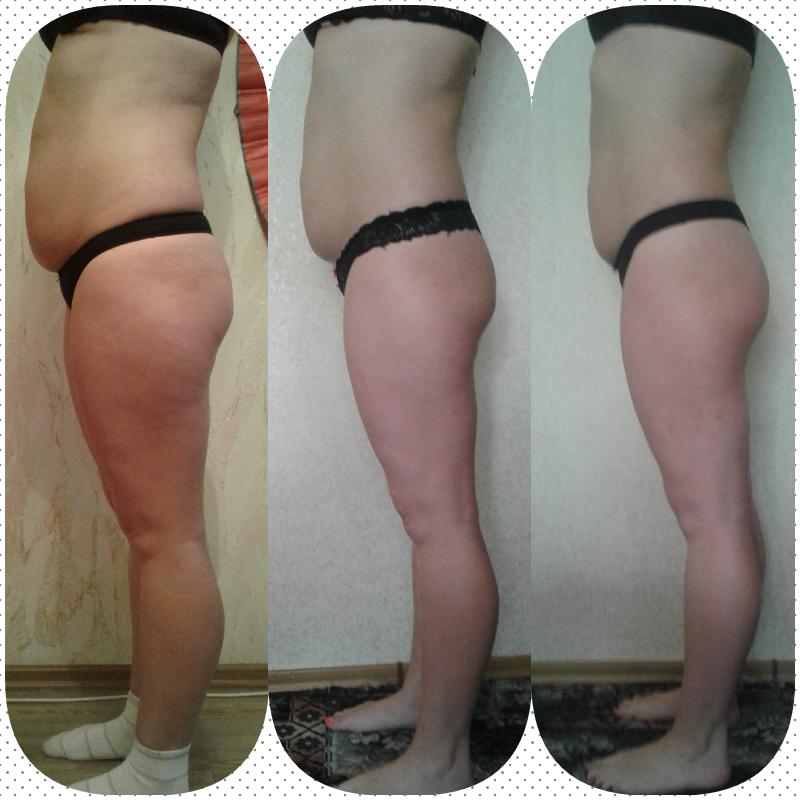Эффективность Массажа При Похудении. Массаж для похудения. Как массаж поможет вам сбросить вес? ПП и ЗОЖ